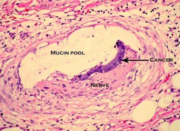 Mucinous Neoplasms